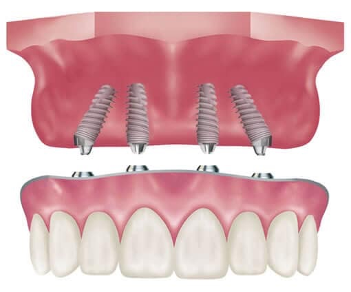 Deciding to Get a Tooth Implant | How Much Does a Tooth ...