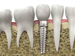 extraction vs root canal