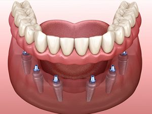 full mouth dental implants
