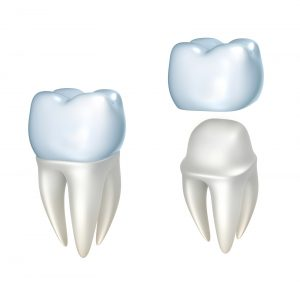 Crown After a Root Canal