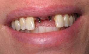 why are dental implants so expensive