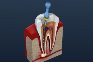 root canal specialist