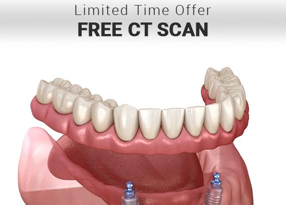 ct scan for dental implants